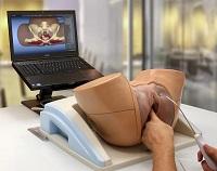 stymulacja montażu prostaty)